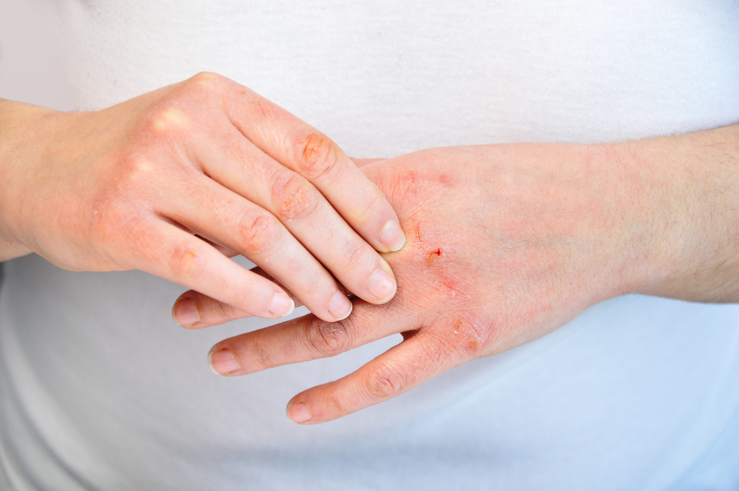 Glove Allergies Explained Part Three of Four