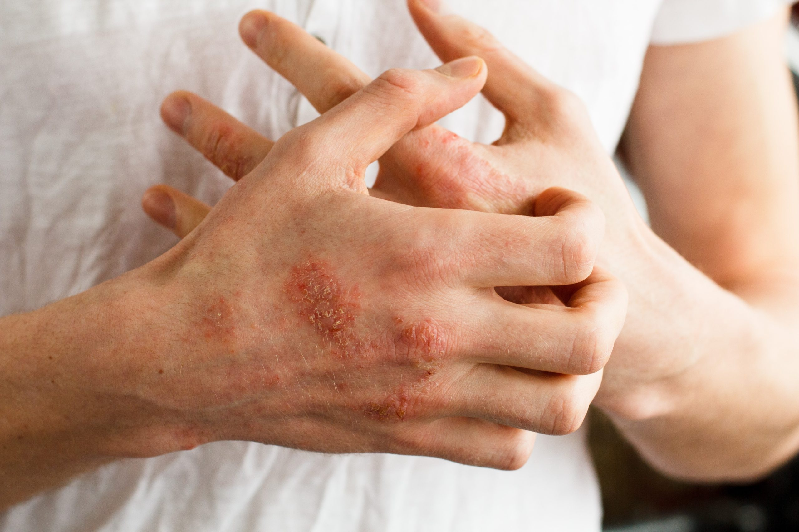 Glove Allergies Explained Part Four of Four